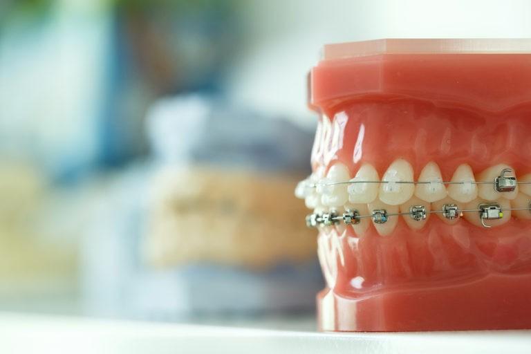 modèle de dentition avec appareil dentaire