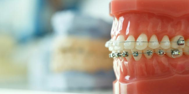 Que faire si le fil orthodontique blesse?