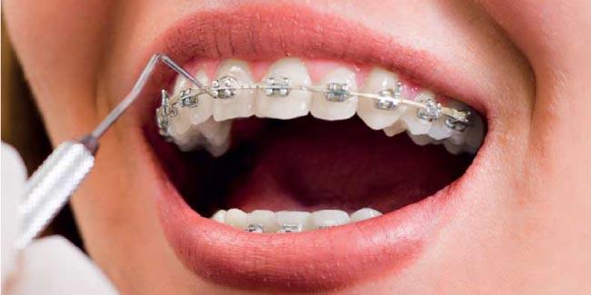Que faire si une bague orthodontique se décolle ?