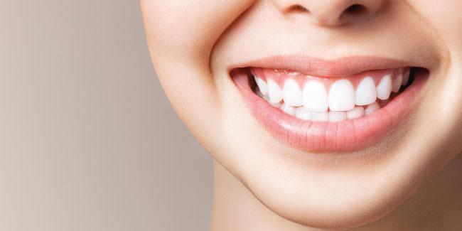 A quoi sert la contention orthodontique?