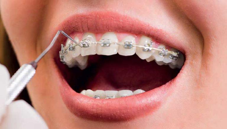 pose appareil dentaire multi attaches