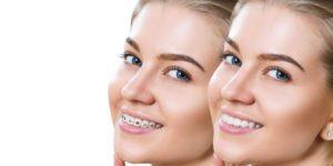 Mes dents peuvent-elles de nouveau bouger après mon traitement orthodontique ?
