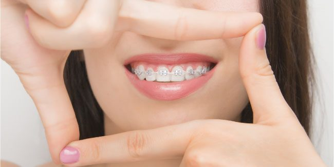 orthodontie-comment-ca-marche-cabinet d'orthodontie à La Rochelle
