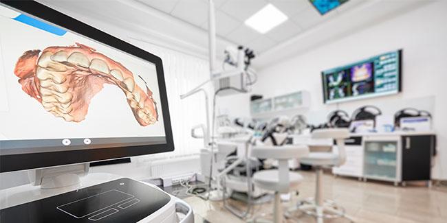 L'empreinte numérique en orthodontie, une réelle révolution