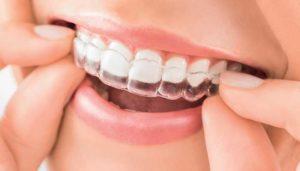 gouttière dentaire la rochelle