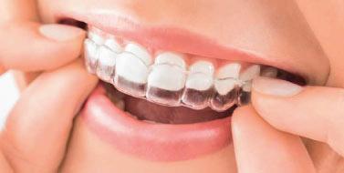 Les appareils dentaires invisibles