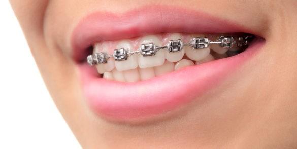 Que faire si l'appareil orthodontique blesse ?