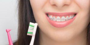 Quelles sont les précautions à prendre avec un traitement orthodontique?